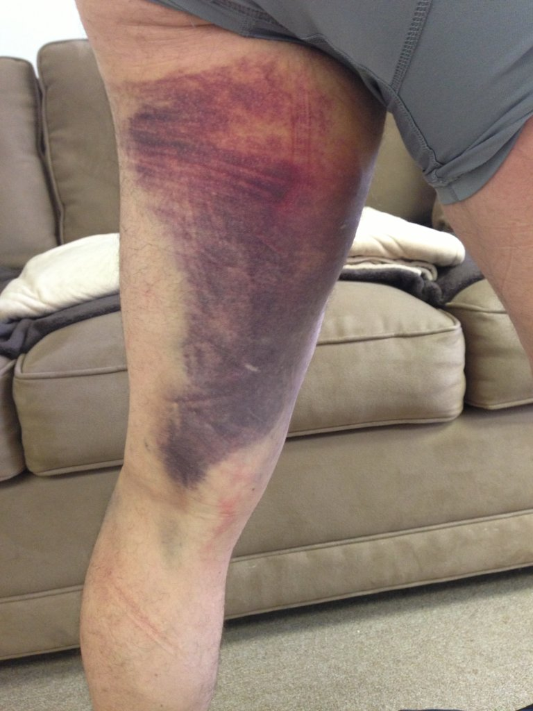 hamstring strain Get information about hamstring injuries (pulled hamstring), including symptoms, causes, treatment, and prevention a minor strain (tear) may heal on its own, while a rupture may require surgery.