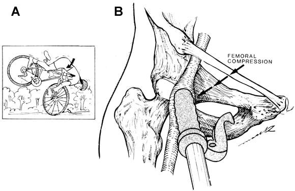 Femoral Artery Injuries: Case Reports (graphic)- Mtbr.com