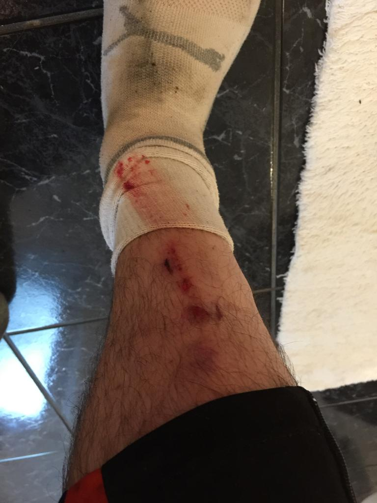 Fat Biking and health-12-aug-17-ouchie.jpg