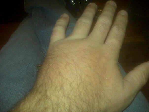 Broken hand?-15937_166103911932_566276932_3308036_8179521_n.jpg