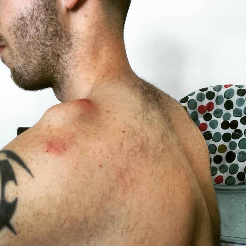 Ac Separation (shoulder Separation)-2.jpg