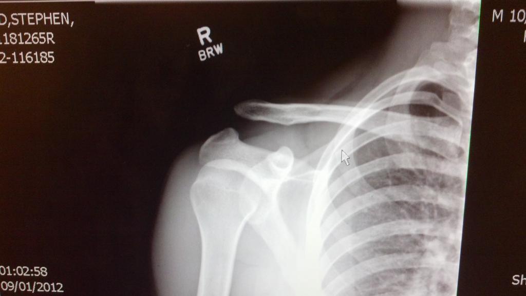 First Frame build + injury report-2012-09-06_10-46-25_511.jpg