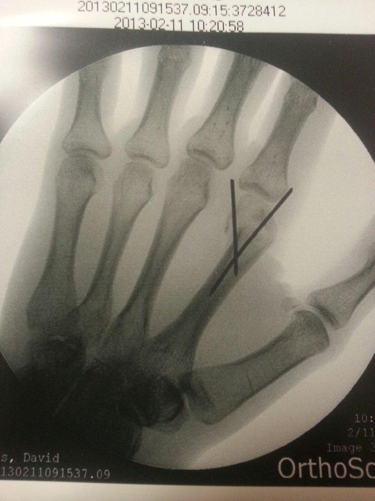 Broken clavicle advice-20130211_091812.jpg