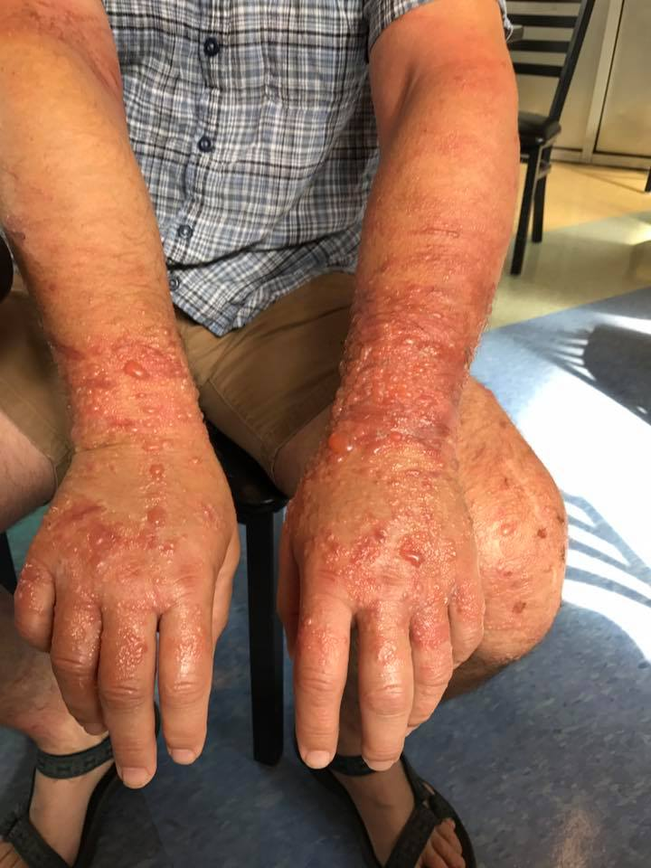 Best Poison Oak Treatment-20664510_1628547780553847_2955155626958759665_n.jpg