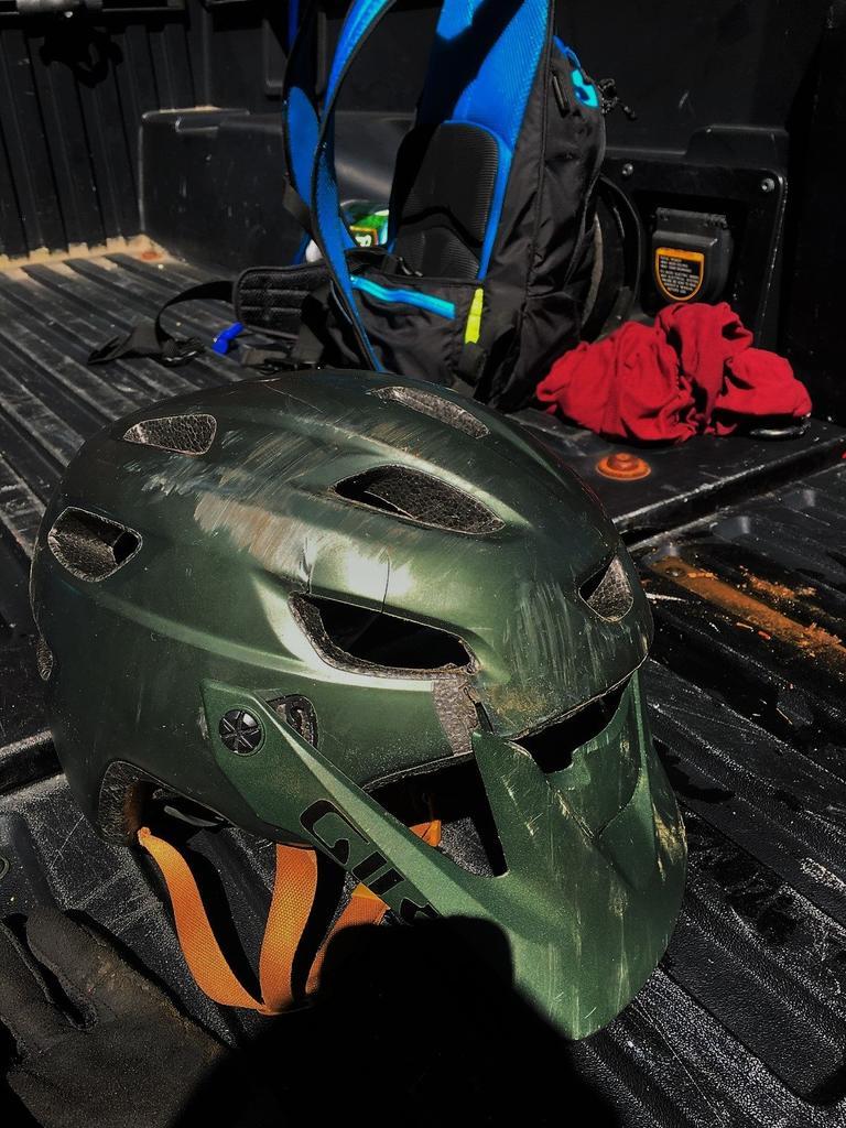 When Helmets Do Thier Job...Post Pics and Story!-21273379_10100999010576756_5204874520239693151_o.jpg