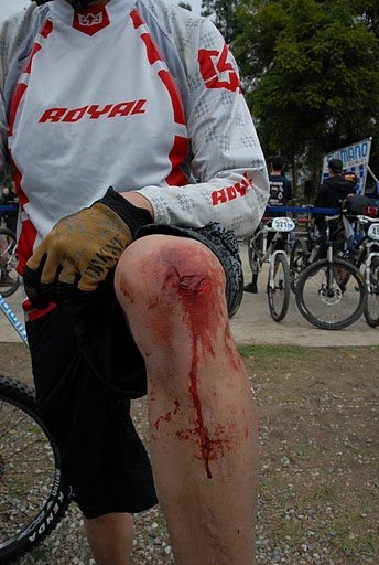 What are.your best bike crashes/injuries?-24130_605009244738_7589861_n.jpg
