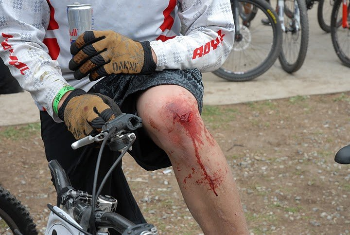 What are.your best bike crashes/injuries?-24130_605009249728_4420088_n.jpg