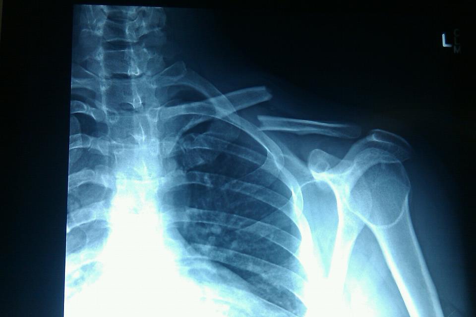 Collarbone plate removal-293605_10100219989930519_30816484_46579859_1406764301_n-1.jpg