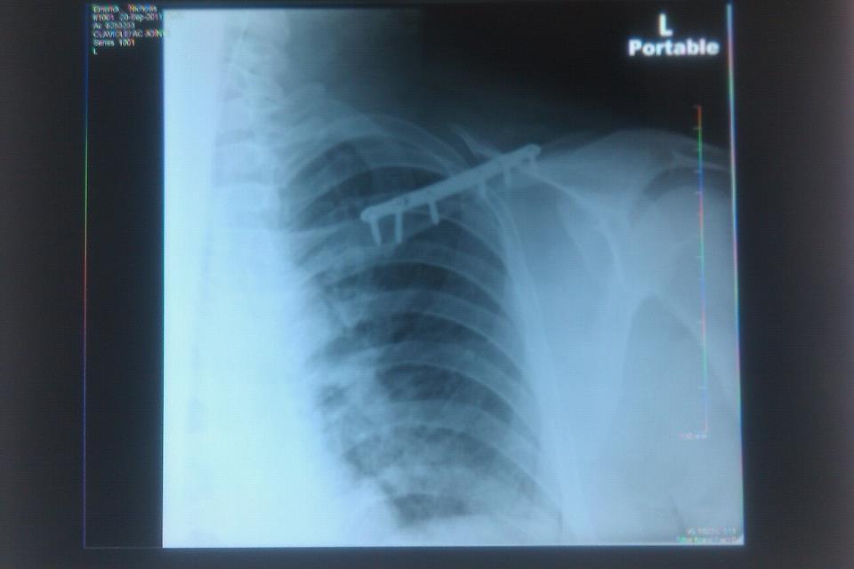 Collarbone plate removal-313370_10100227784500139_30816484_46635193_703848437_n-1.jpg