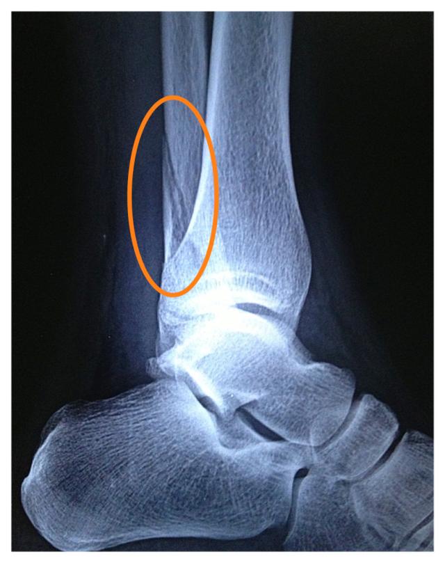 Broke my ankle-3d769211872aa55cc5e840c8707634e3_zpsb3ab6511.jpg
