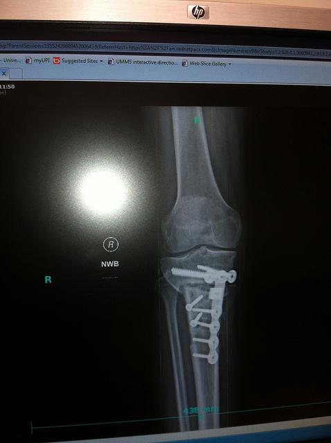 Xpost from AZ: High Tibial Osteotomy-8470767011_0fcef7d89f_z.jpg