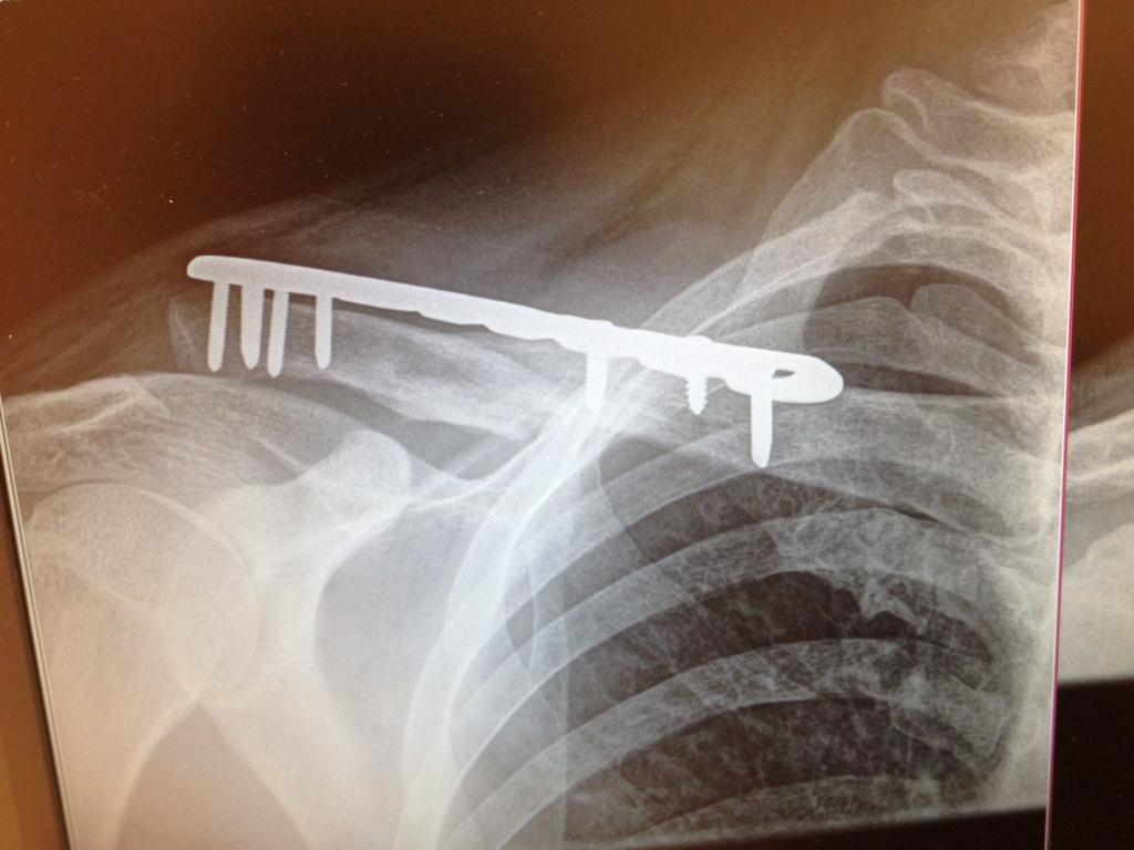 How to speed up recovery process for broken bones?-9f4a6193-31b5-4539-9852-609161d6c19e-3318-000005db35b923d9_zpsb4683f43.jpg