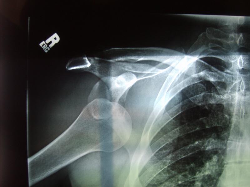AC Separation Grade III Recovery-arm11.jpg
