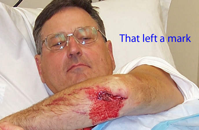 Passion or insanity? Post your injury pics. CAUTION eye damage may occur.-bad-elbow.jpg