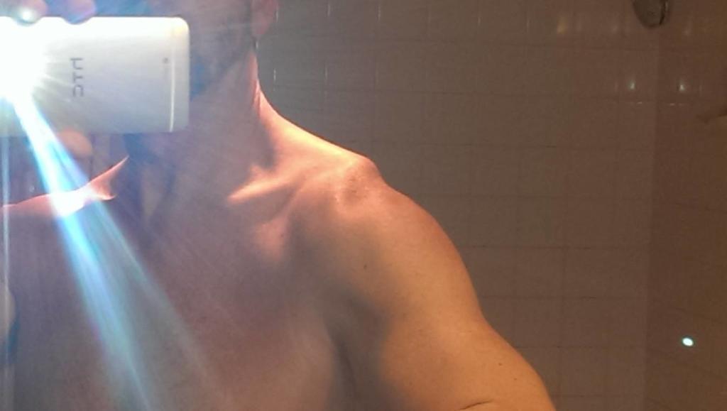 Ac Separation (shoulder Separation)-biking-injury.jpg