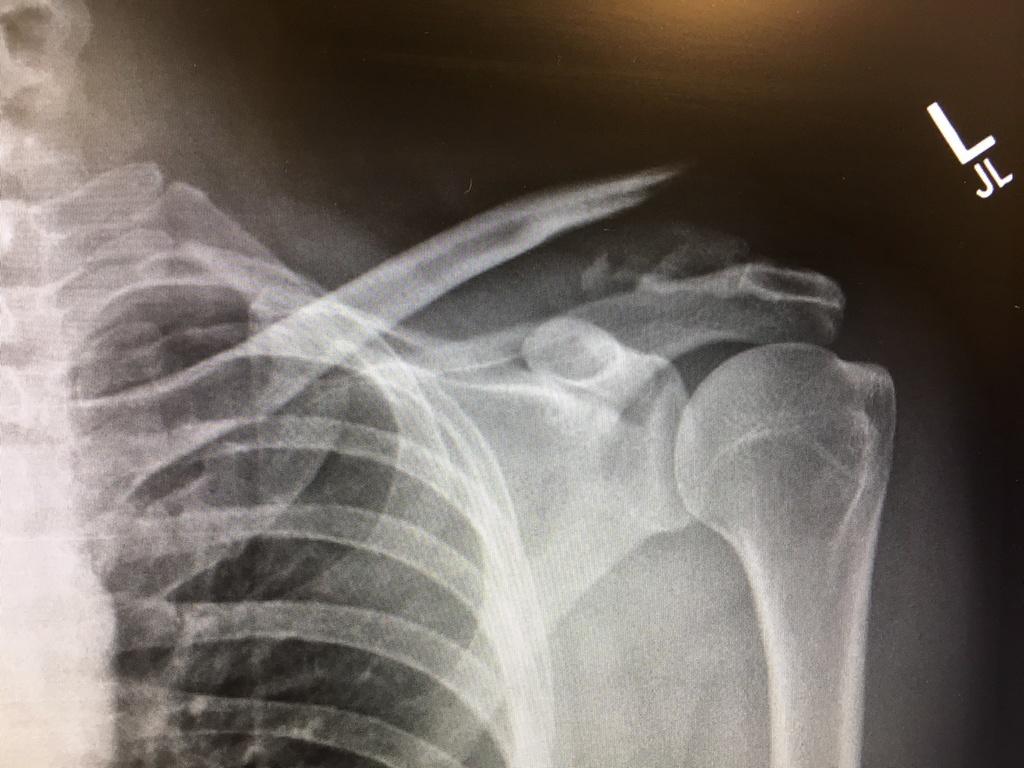 Broken Fractured collarbone experience?-bone.jpg