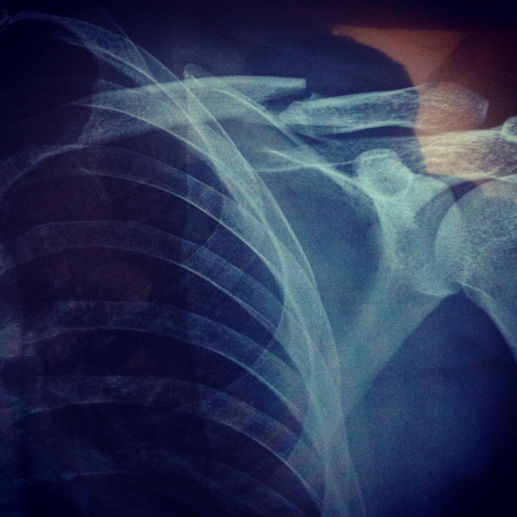 Clavicle broken -surgery or let it be?-broken-left-clavicle.jpg