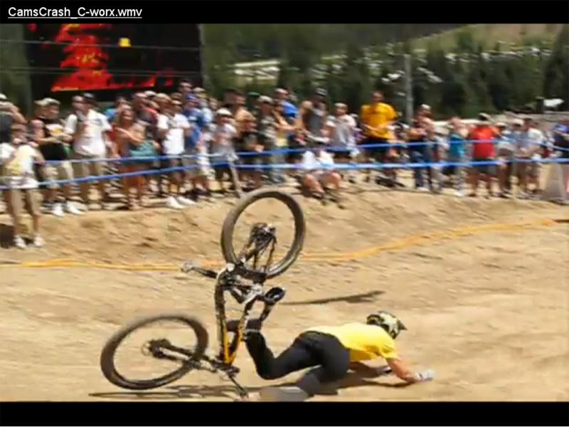 healing Vibes for Cam McCaul..Femur-cam-crash.jpg