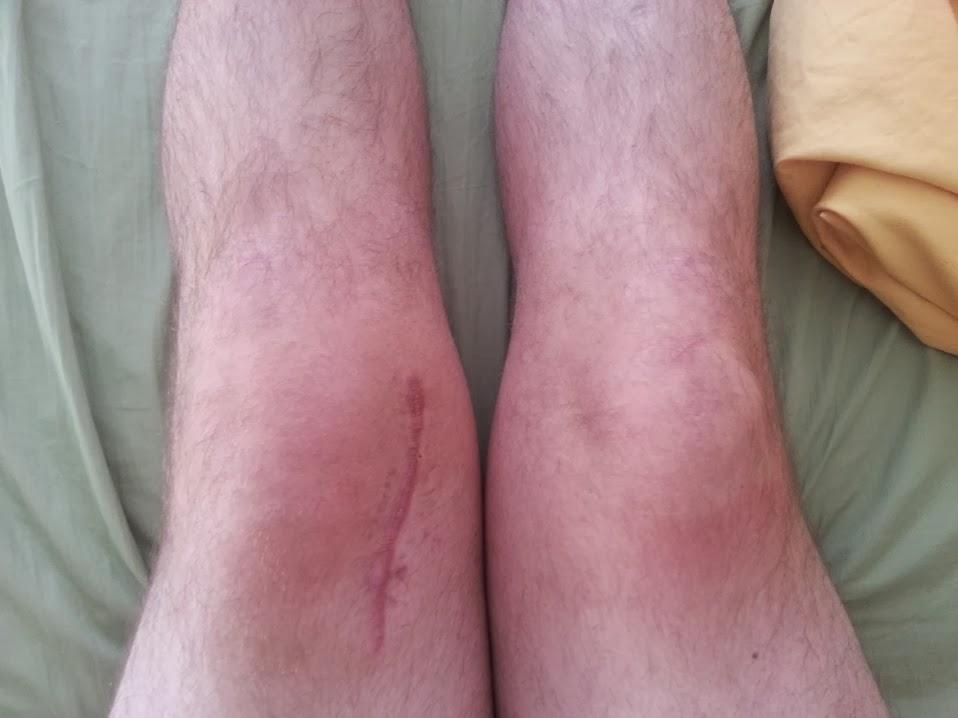 Wood in my knee wound-camerazoom-20140201085739095.jpg