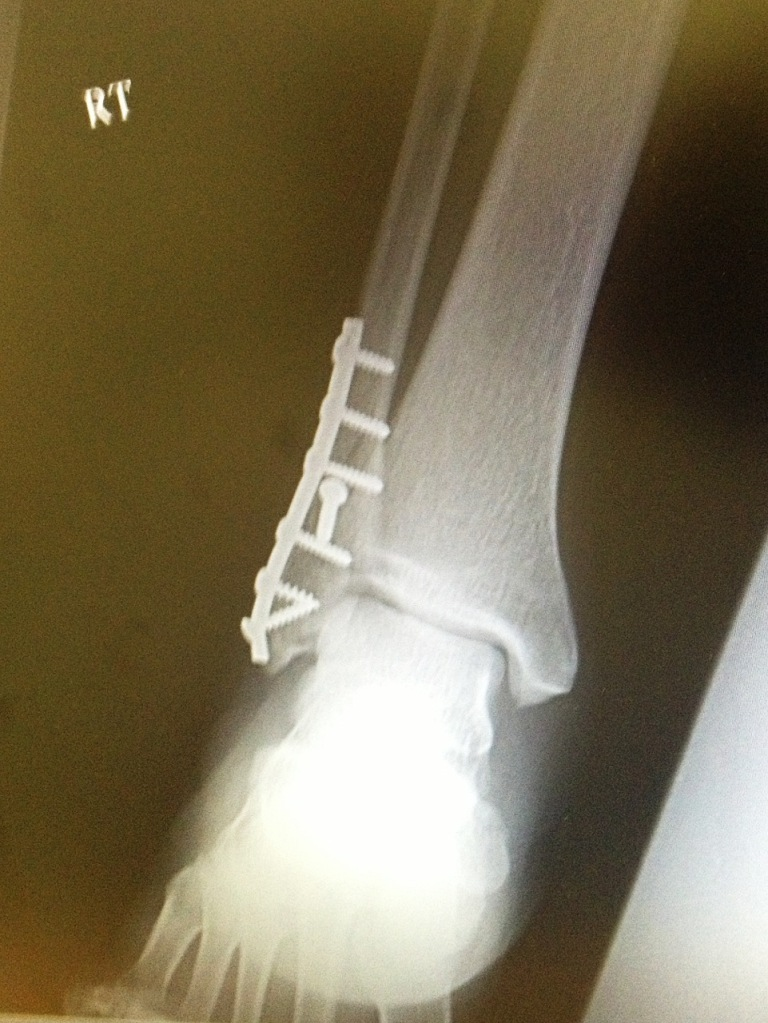 Broken Ankle Advice.....-chris-ankle.jpg