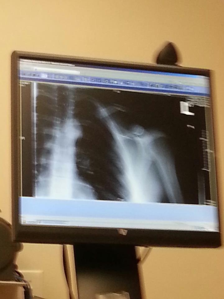 First bike injury..-collar-bone.jpg