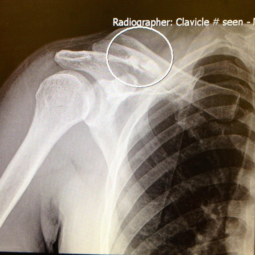 How to speed up recovery process for broken bones?-collarbone_zps3bc0d9f6.jpg