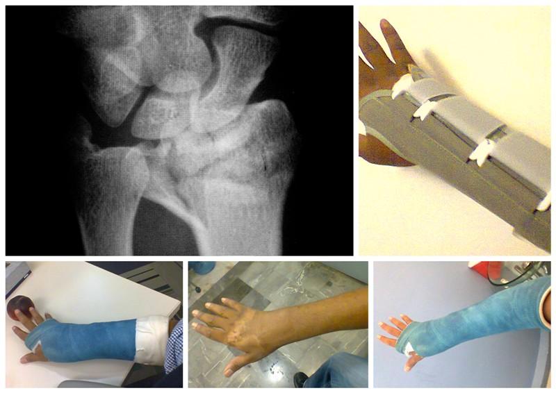distal radius fracture--4 months later-copy-bluetooth-exchange-folder1.jpg