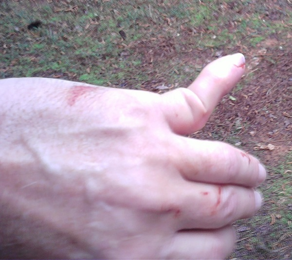 Dislocated finger -- hang onto the bars!-dislocated-finger-cropped-600.jpg