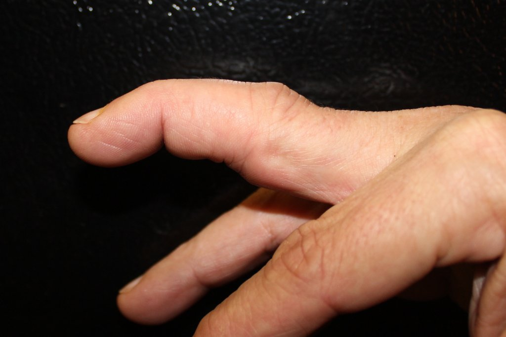 What pains do you have and how do you manage them?-dislocated-finger.jpg