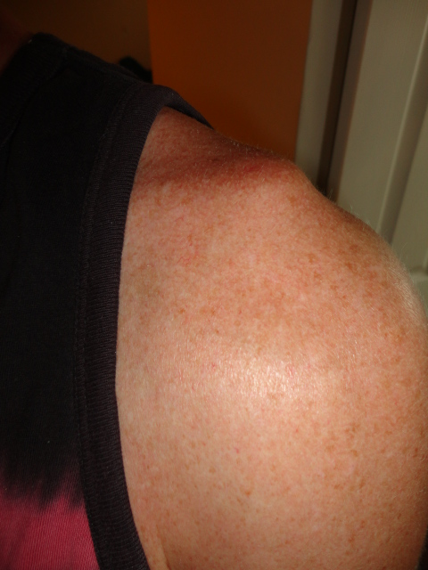 My AC (Shoulder) Separation Story and Experience-dsc03354-1-.jpg