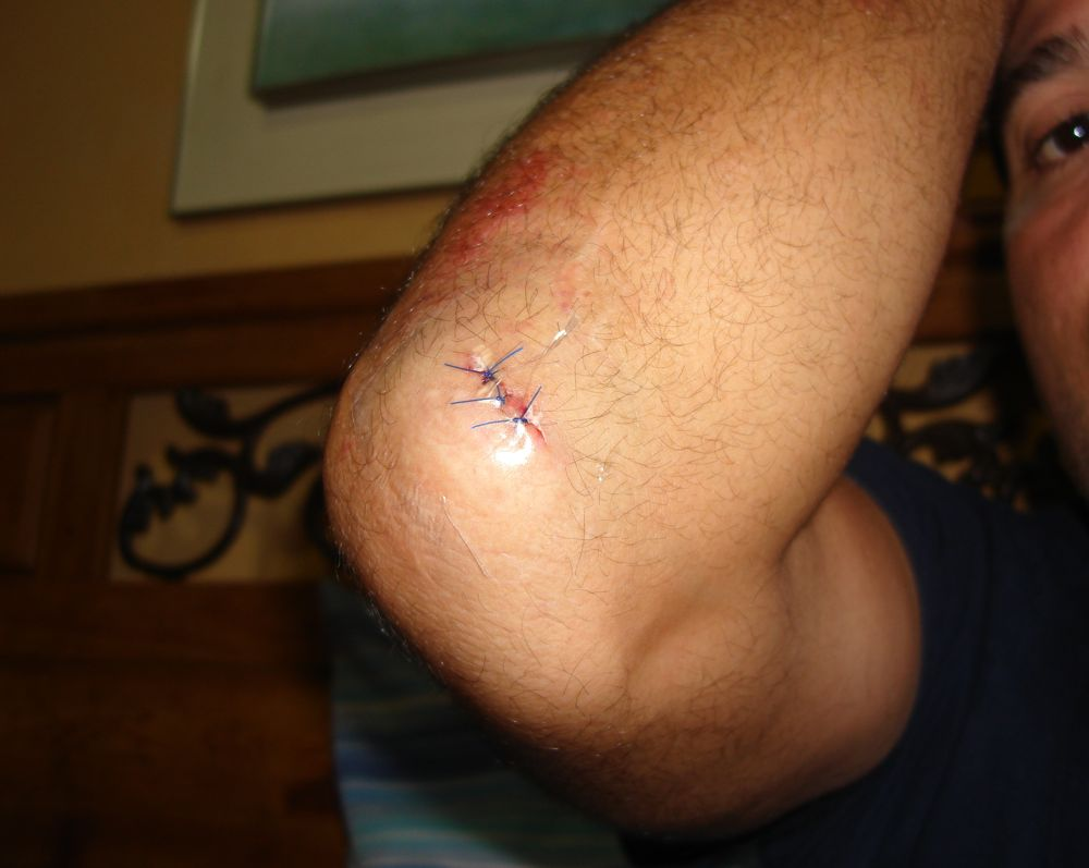Ride Injuries Post a Pic....[GRAPHIC content]-dsc05239.jpg