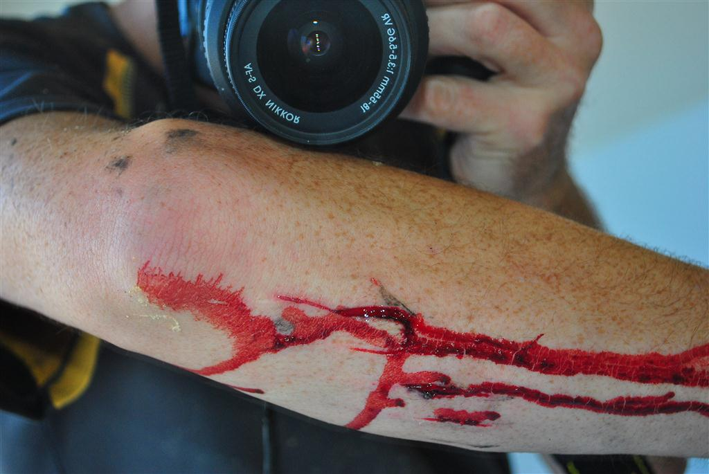 Passion or insanity? Post your injury pics. CAUTION eye damage may occur.-dsc_0064-large-.jpg
