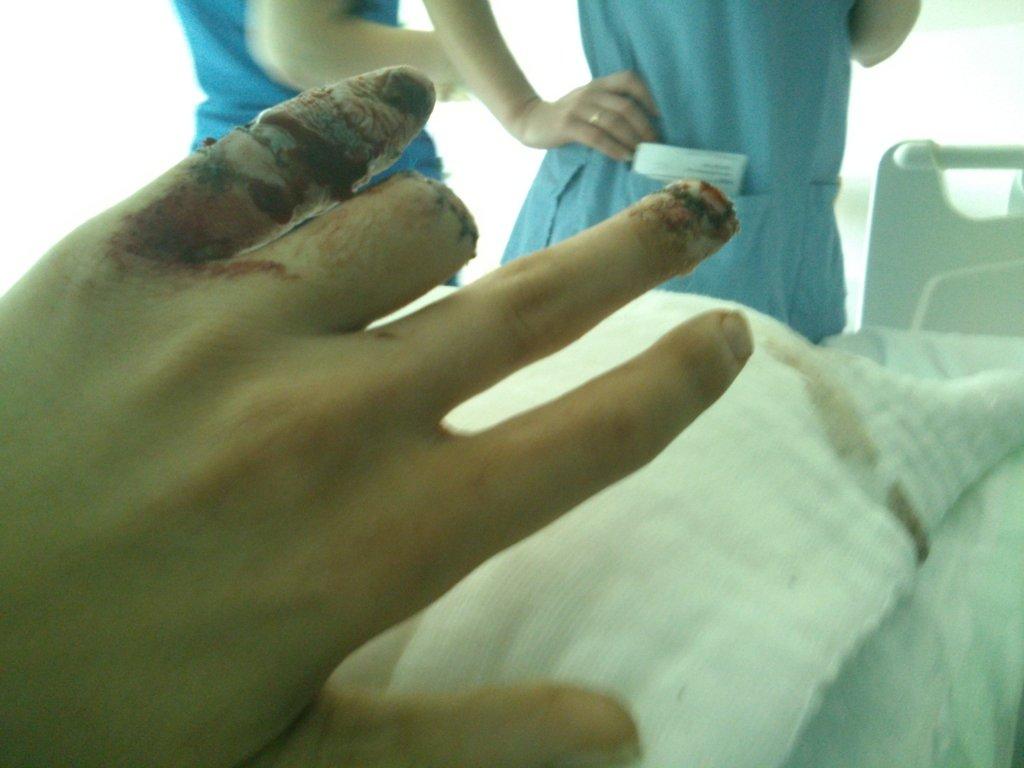 severed finger-dsc_0208.jpg