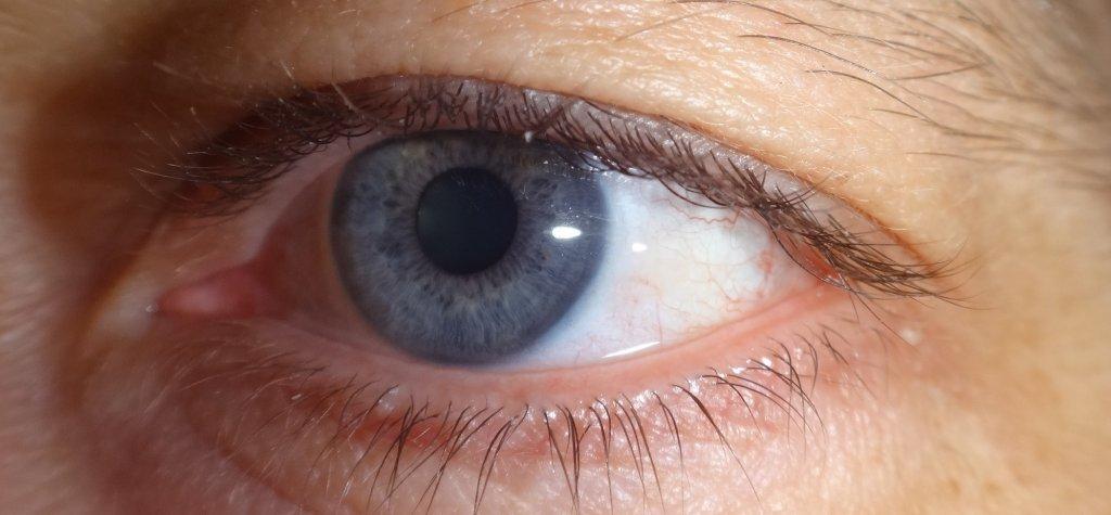 Insomnia --- here we go again.-eyeball.jpg