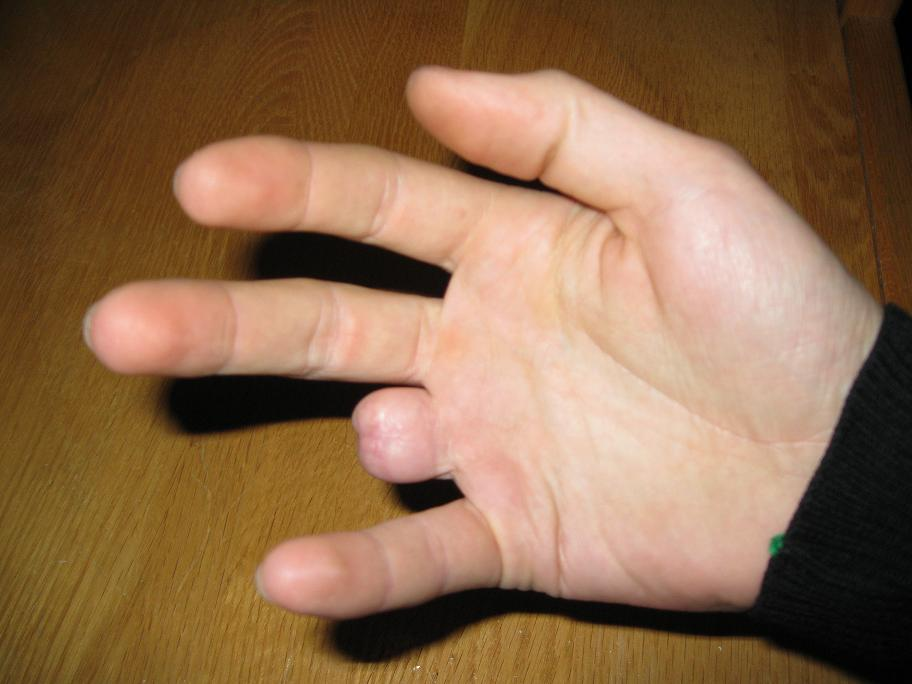 Roll Call - What's your most serious injury?-finger.jpg
