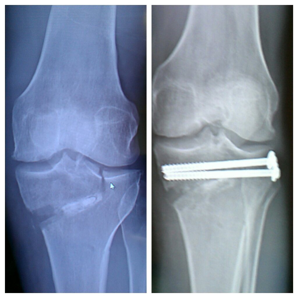 High tibial osteotomy physical therapy - Hto High Tibial Osteotomy Hto Before After Jpg