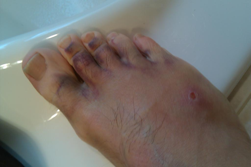 Ride Injuries Post a Pic....[GRAPHIC content]-imag0052.jpg