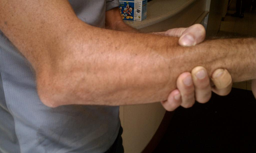 Dislocated and Fractured Elbow-imag0067.jpg