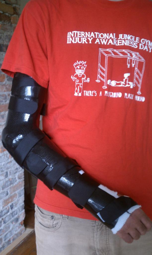 Dislocated and Fractured Elbow-imag0079.jpg
