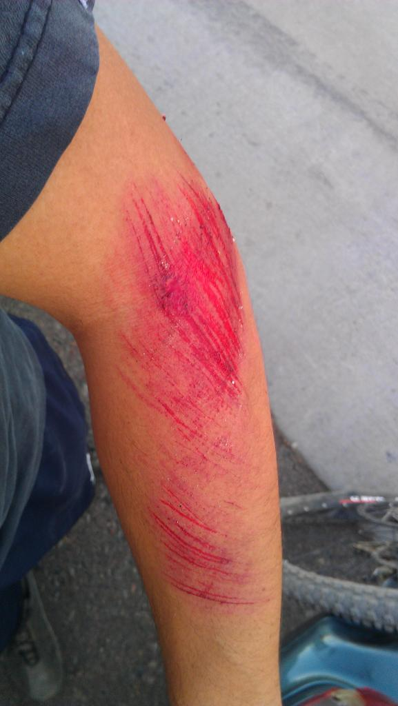 What are.your best bike crashes/injuries?-imag0590_zps60b0b86b.jpg