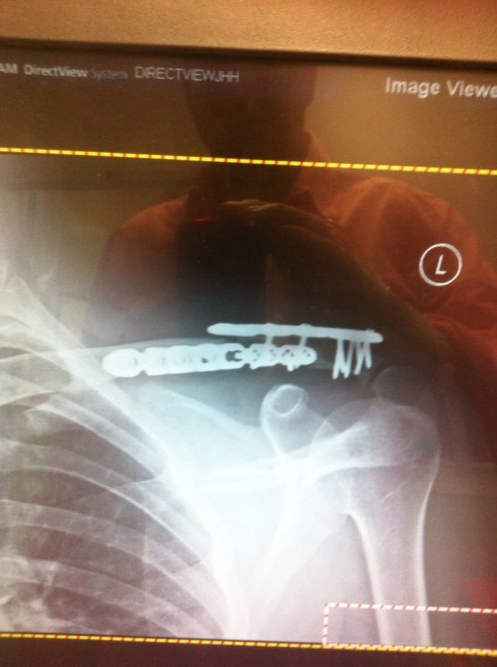 Another Broken Collarbone Thread (nutrition, rest, etc)....-image.jpg