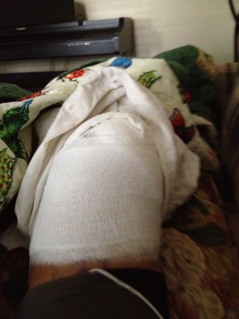 Knee problem: extruded meniscus ?-imageuploadedbytapatalk1345609434.036136.jpg