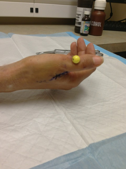 Time Out for Avulsion Fracture-imageuploadedbytapatalk1351835239.548172.jpg