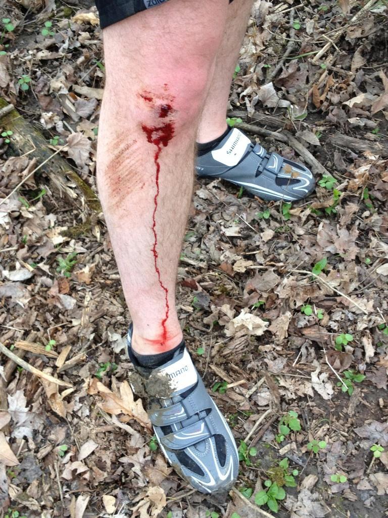Lamest Biking Injury Ever-img953389.jpg