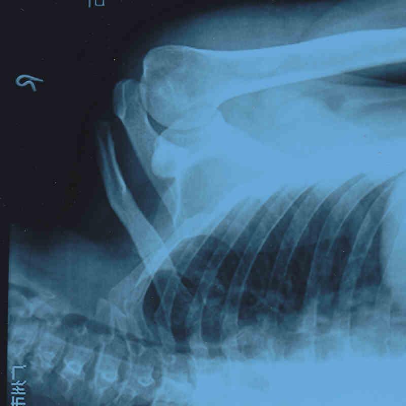 Ac Separation (shoulder Separation)-img_0001.jpg