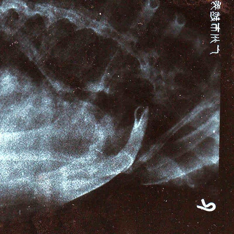 Hurt Collar bone bad in China today. Doctors no help. Need MTBRs advice. Hurts so Bad-img_0002.jpg