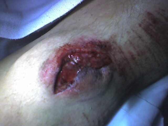 avulsion fracture of knee patella...how to be back on the bike FAST!-img_0015.jpg