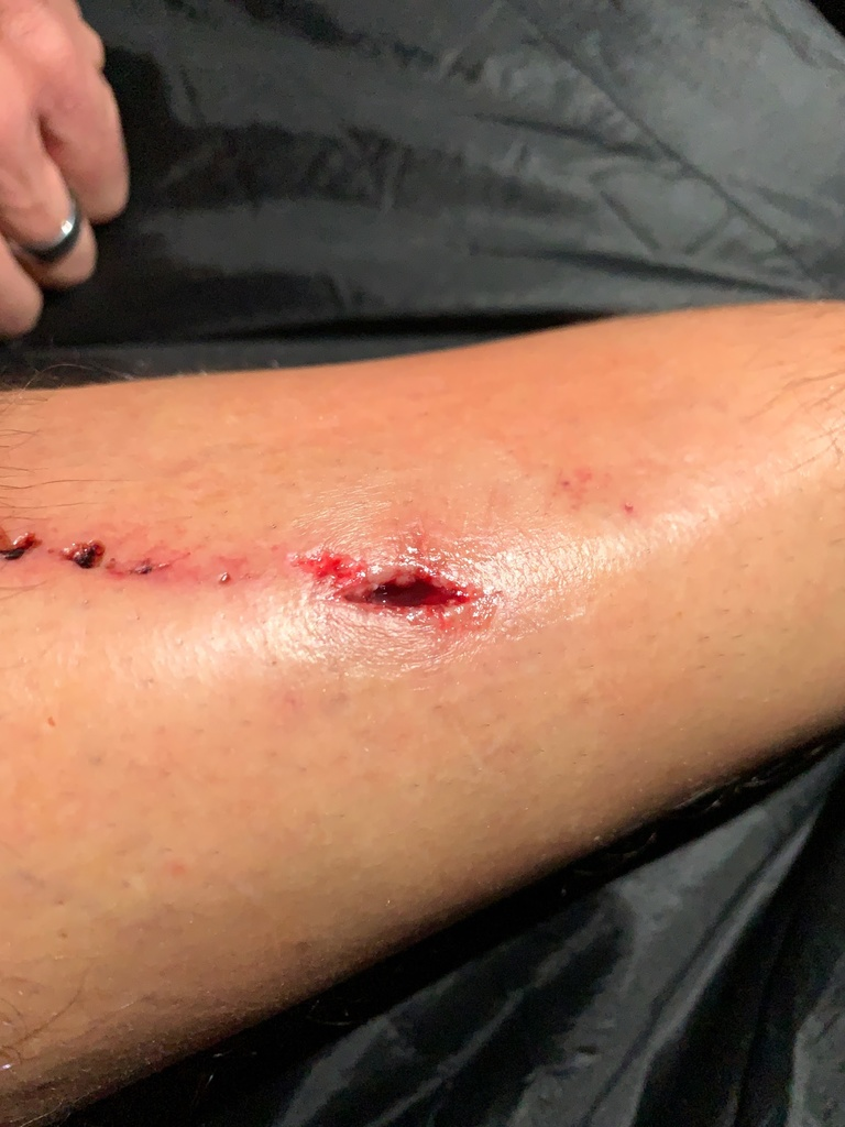 One of my coolest looking leg scars yet-img_0614.jpg