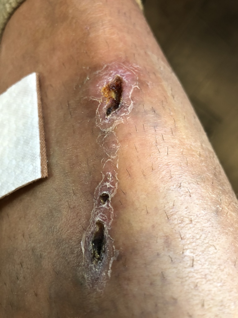 One of my coolest looking leg scars yet-img_0650.jpg