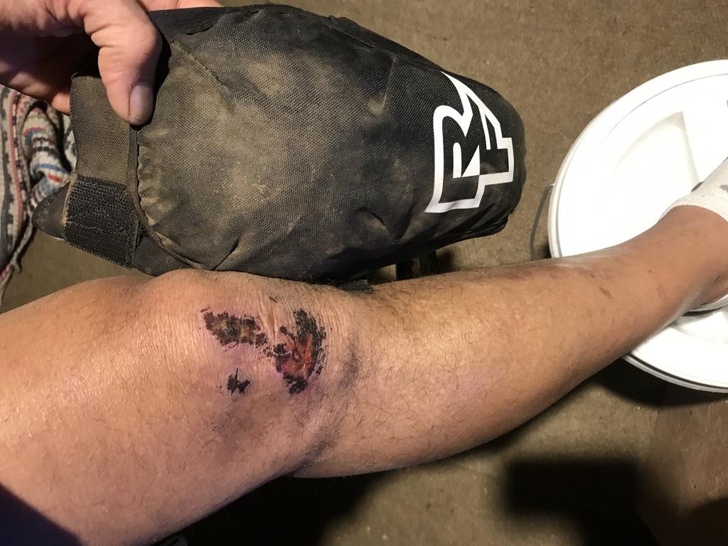 You wear knee pads on each ride?-img_1156.jpg